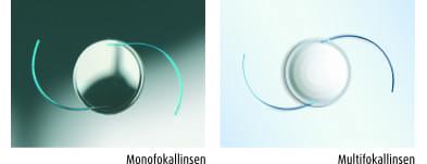 Bild von Intraokularlinsen – das implantierte Sehen