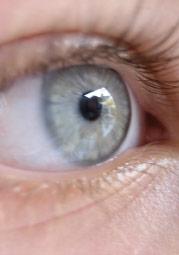 Bild von Zentralarterienverschluss im Auge