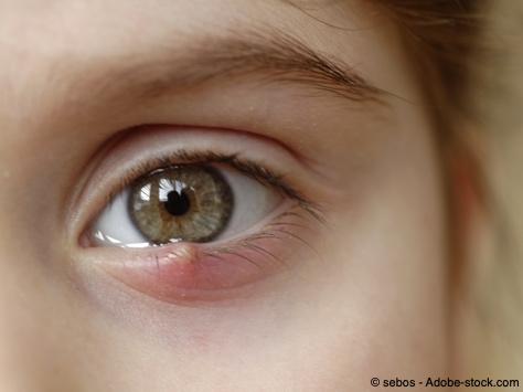 Bild von Gerstenkorn am Augenlid – Ursachen und Behandlung